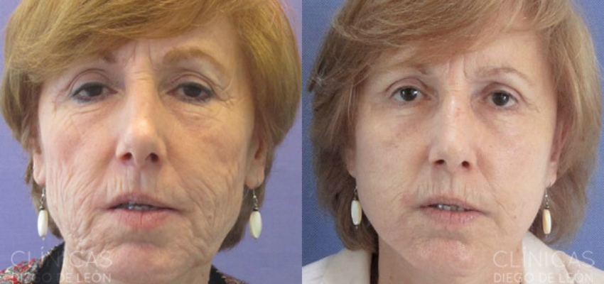 Resultados de un lifting facial